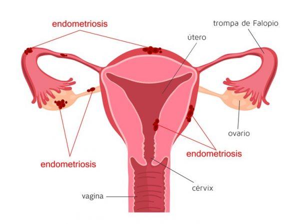 Sistema reproductor femenino con endometriosis