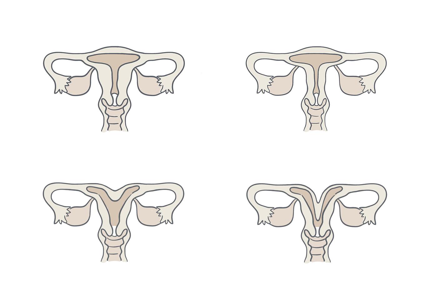 tipos de útero