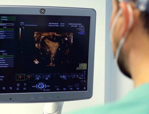 Malformazioni uterine: possono essere trattate chirurgicamente?